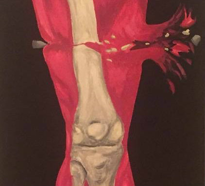 Painted image of cross-section of human leg being damaged by a bullet.